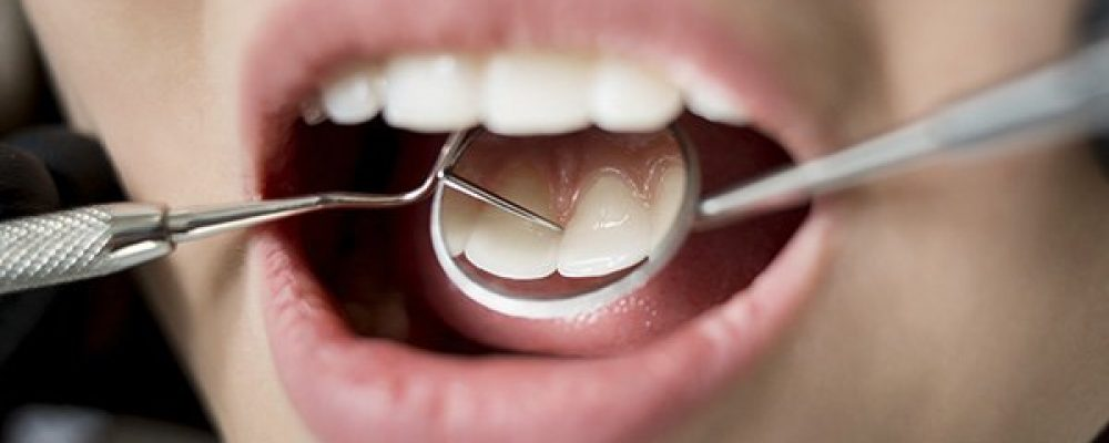 When Is The Best Time To Take Your Children To A Dentist
